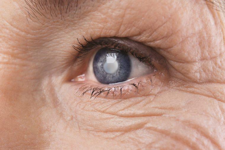 elderly glaucoma eyes Cataract senior