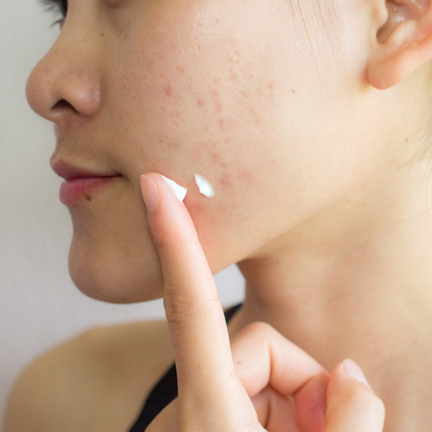 The Best Moisturizers for People With Acne