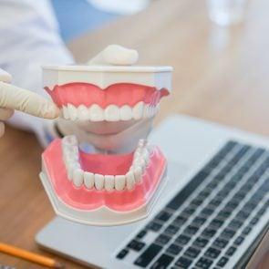 dentist close up of teeth model
