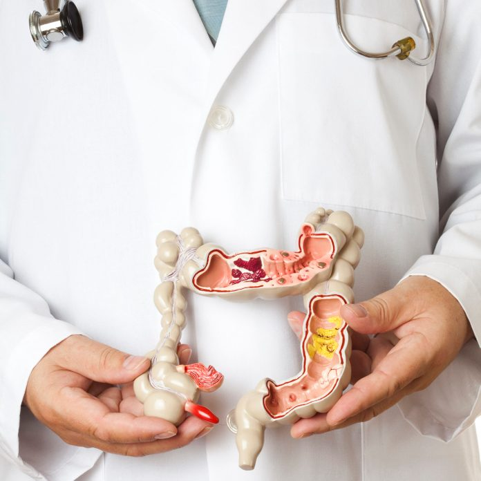 colorectal cancer signs medical model of a colon
