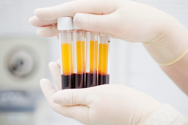 blood with plasma in test tubes for medical research