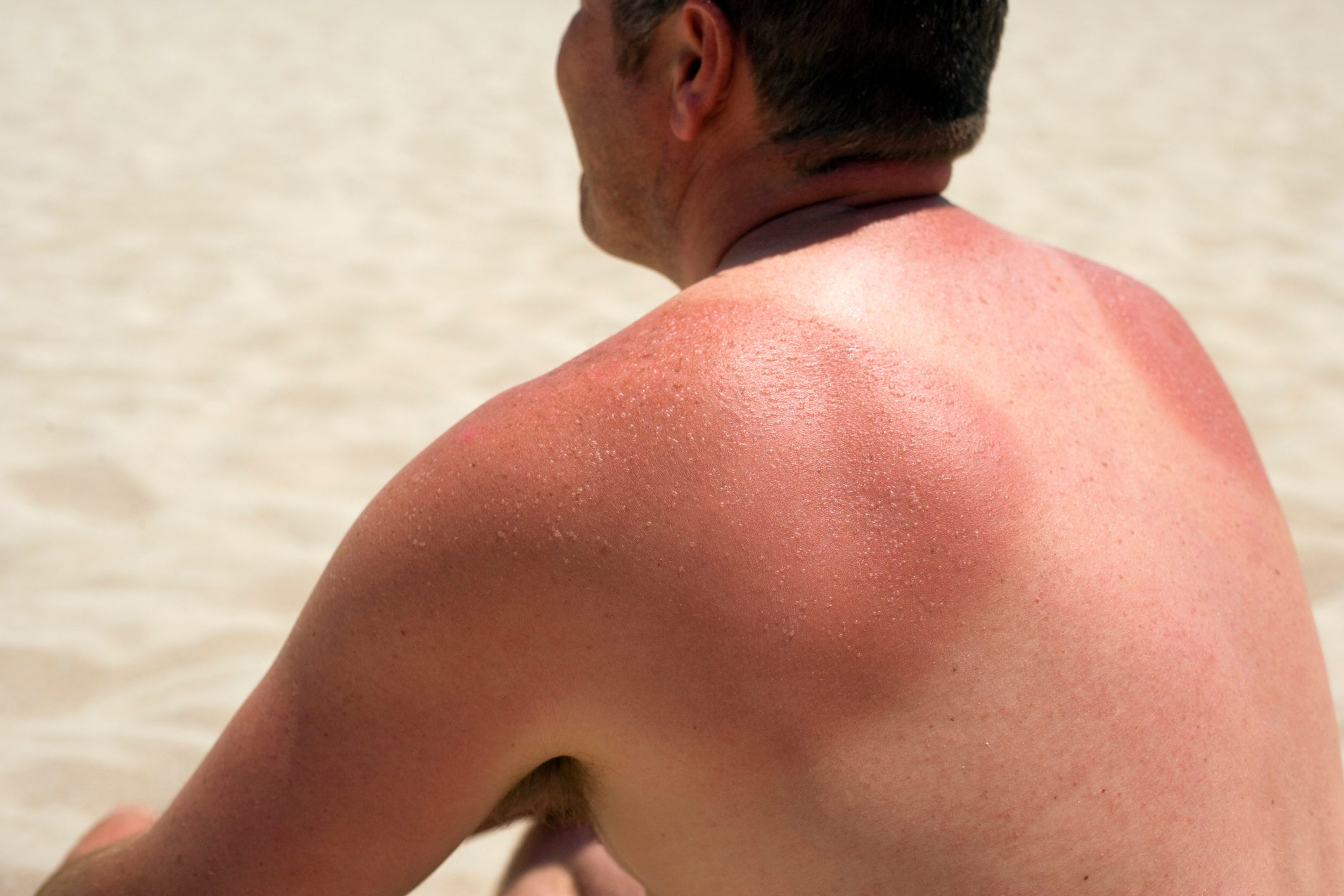 man sitting on beach with sunburn on his back