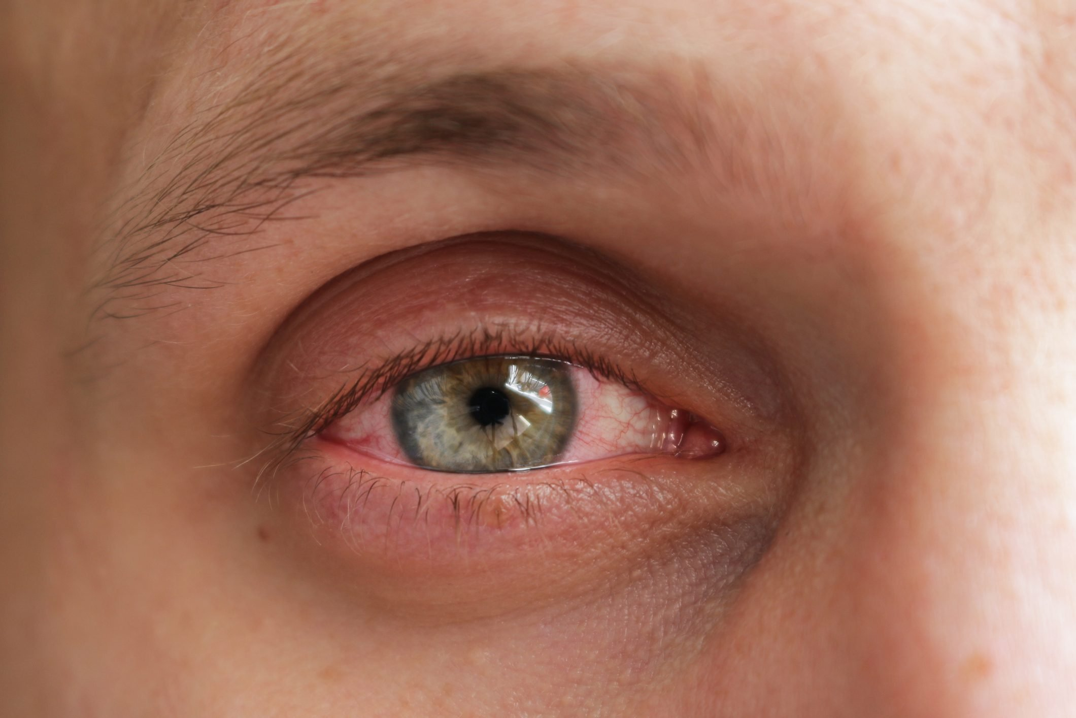 close up of man's eye with conjuntivitis