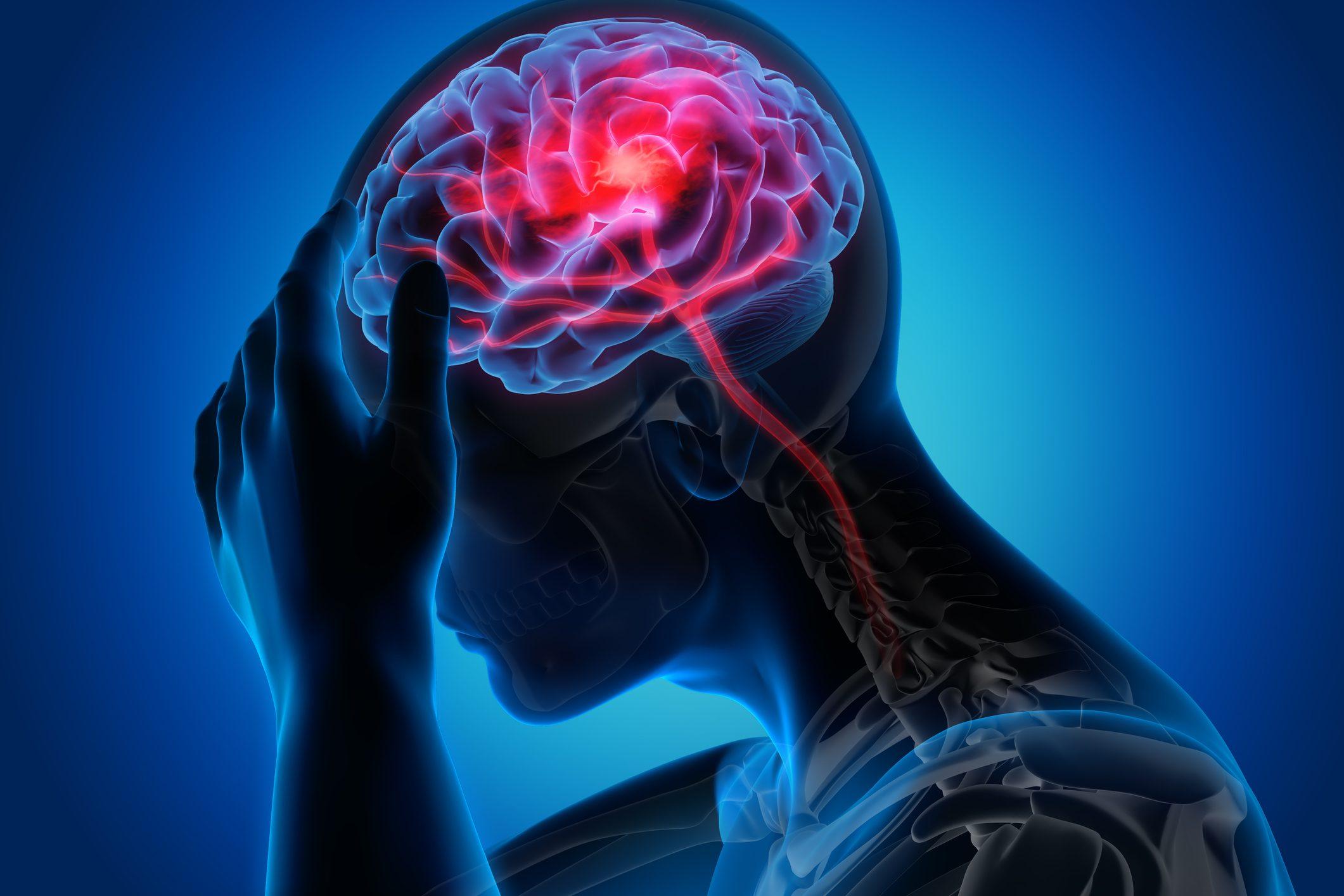 medical stroke diagram