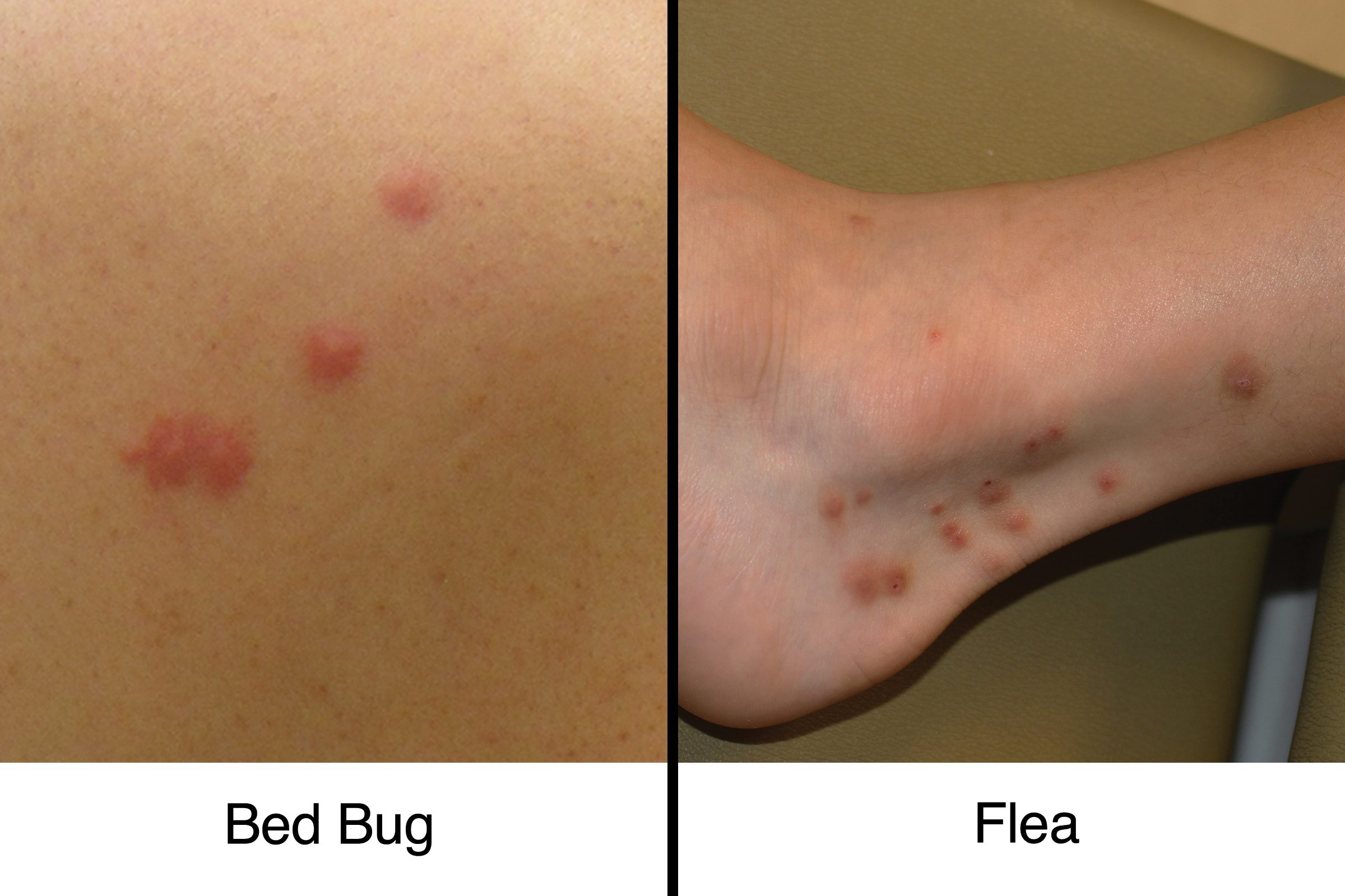 bed bug bites vs flea bites