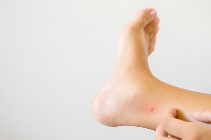 woman's hand itching bug bite on foot