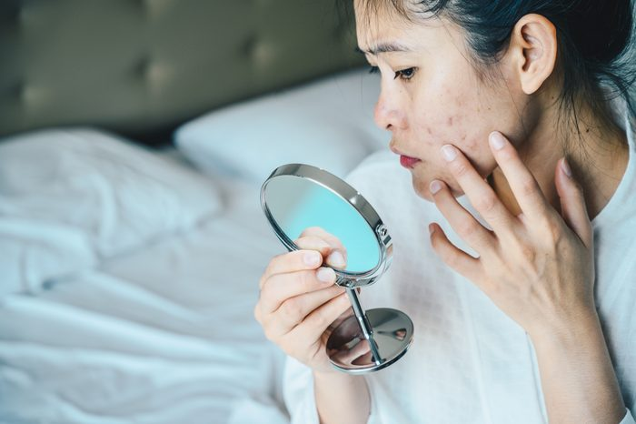 Close up of Asian woman worry about her face when she saw the problem of acne and scar by the mini mirror.