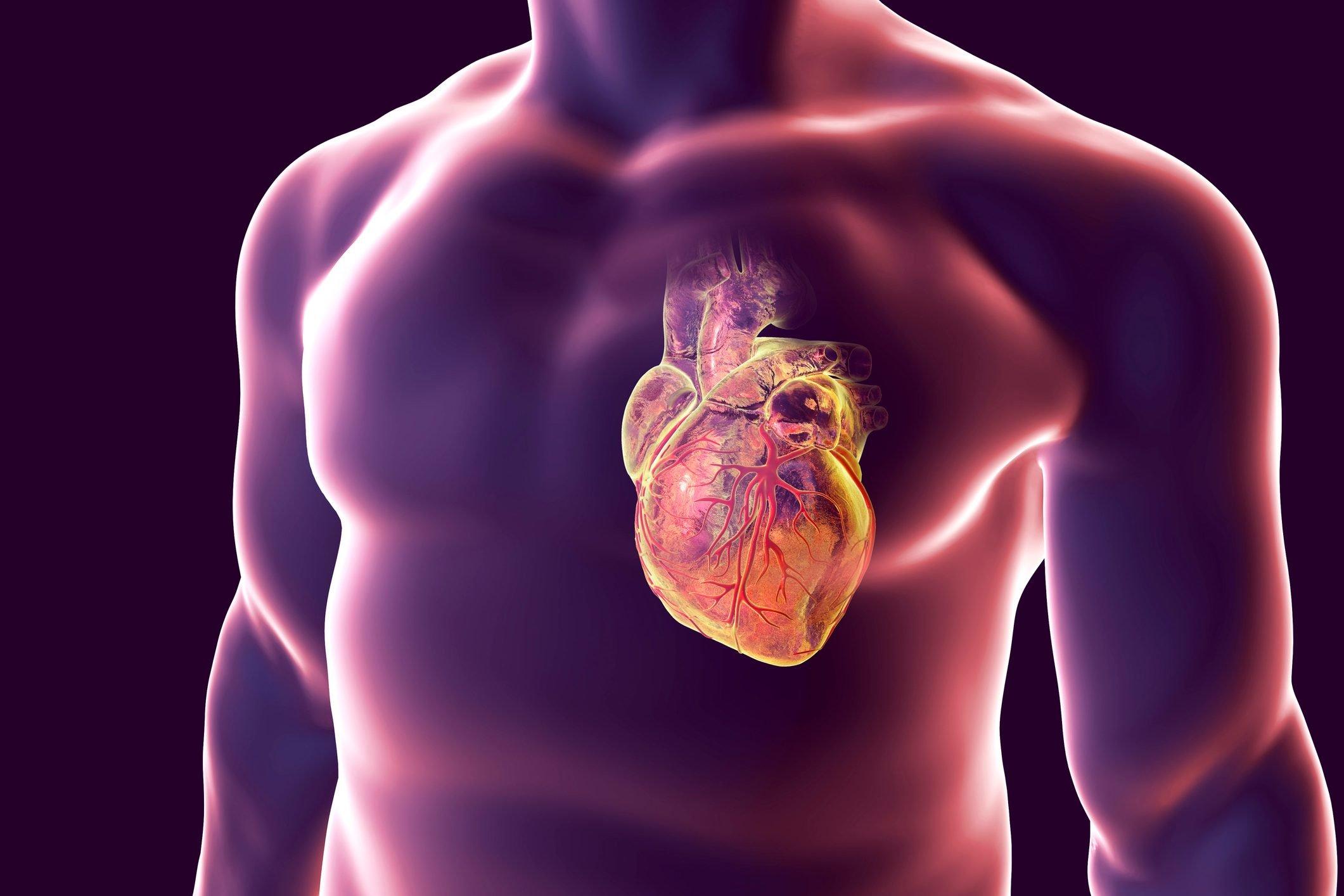 Heart attack, conceptual illustration