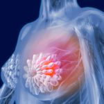 Breast Cancer: What Doctors Want You to Know About Symptoms, Treatment, and Prevention