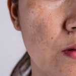 What is Hyperpigmentation? What to Know About Dark Spots and Skin Discoloration