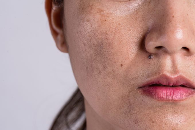 Woman with problematic skin and acne scars. Problem skincare and health concept