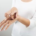 I Had Dyshidrotic Eczema Symptoms for Years Before Getting a Diagnosis