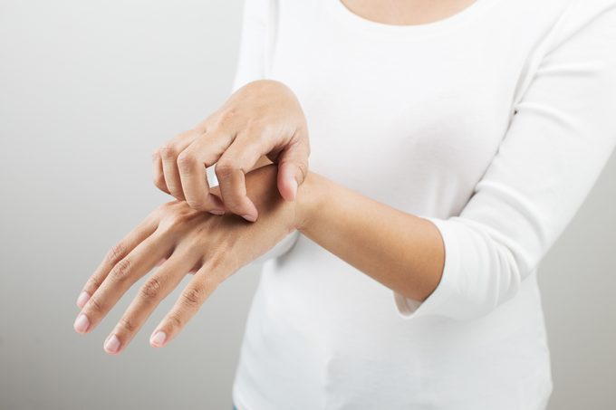Midsection Of Woman Scratching Hand Against White Background