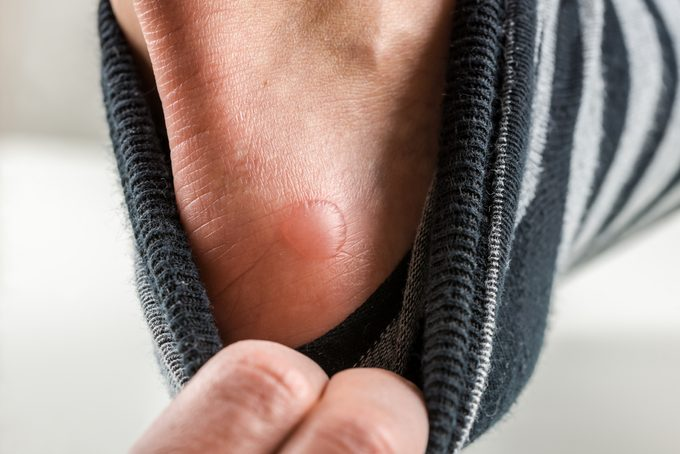 friction blister on heel