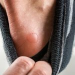 Have a Friction Blister? Here's How to Prevent and Treat Blisters