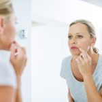 Have a Cold Sore? What to Know About Symptoms, Treatments, and Prevention