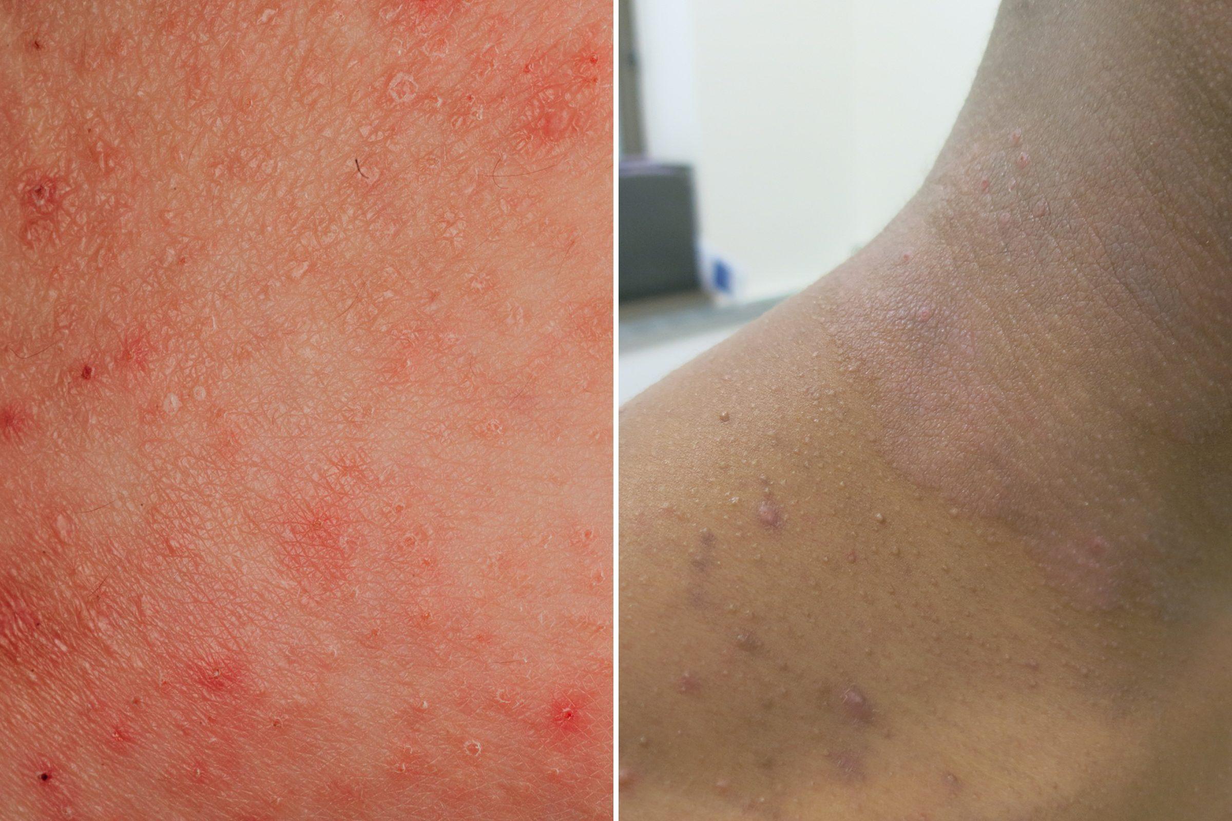 condizione della pelle eczema