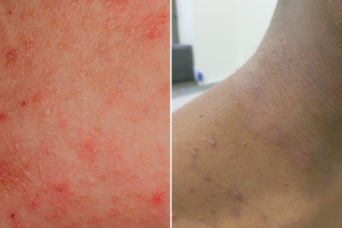 eczema skin condition