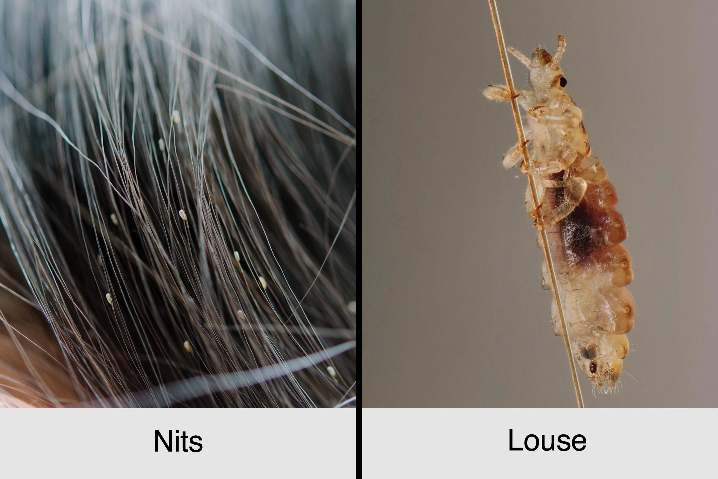 head lice nits vs louse