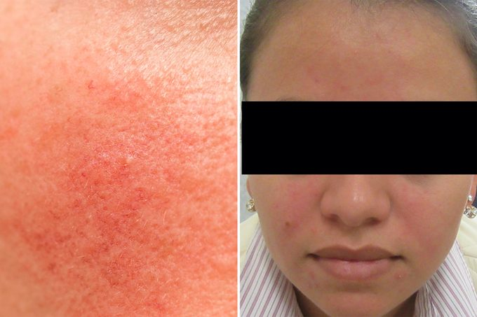 rosacea skin condition on face