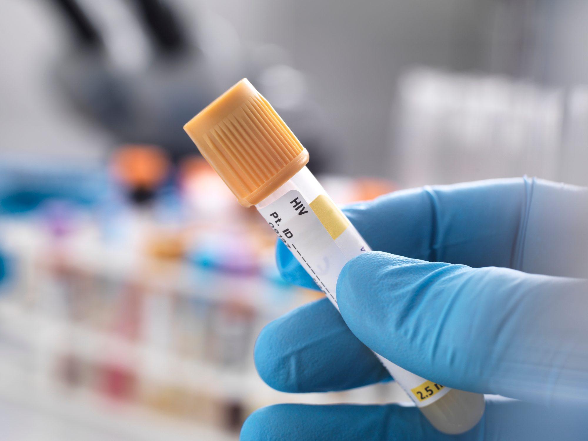 Medical technician preparing a sample for HIV testing