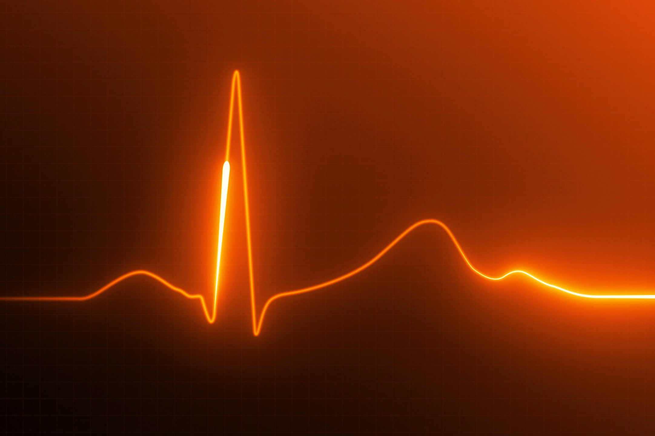 electrocardiogram heart rate image