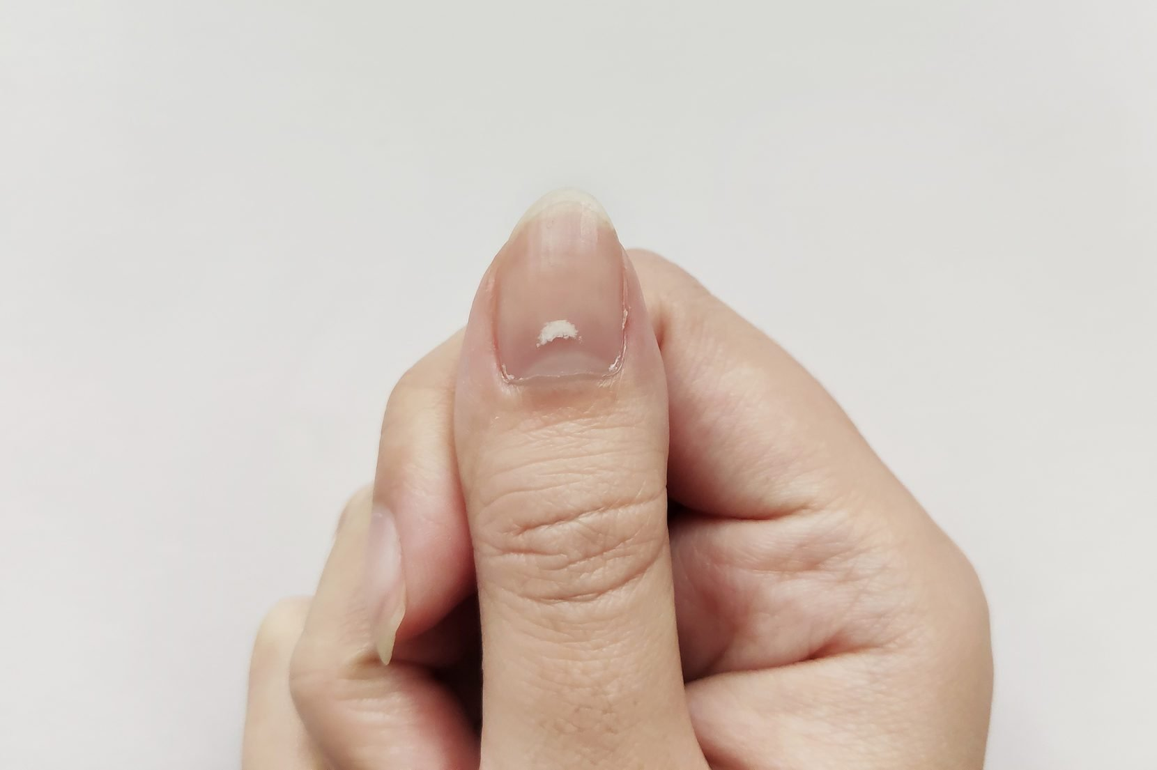Here's What It Means if You Have White Spots on Your Nails | The Healthy