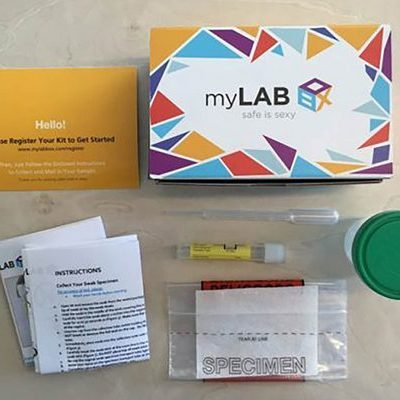 I Tried An At Home Std Testing Kit. Heres What Happened Via Mylabbox.com