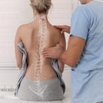 What Is Mild Scoliosis? Here's Everything You Need to Know