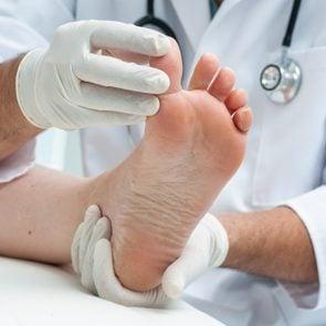 Tinia pedis or Athlete's foot