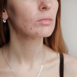 What Is Post-Inflammatory Erythema? These Post-Acne Red Spots Aren't Scars