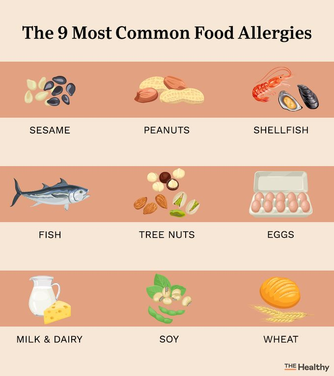 Most Common Food Allergies Infograph8ic01