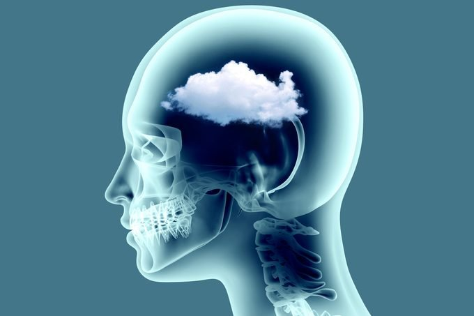x ray image of human brain with cloud detail