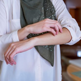 Woman Scratching Her Hand Skin; Dry Skin, Allergic Skin Inflammation, Body Care, Fungus Inflammation, Dermatology Disease, Eczema, Rash, Skin Care Concept; Young Adult Islamic Woman Model
