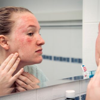 woman looking at skin reaction on face in bathroom mirror