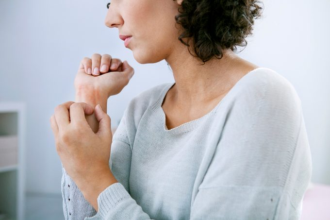 woman itching her wrist