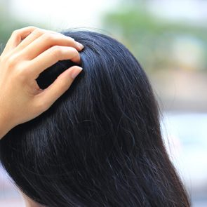 Close-up of woman hand itchy scalp fungus, Haircare concept