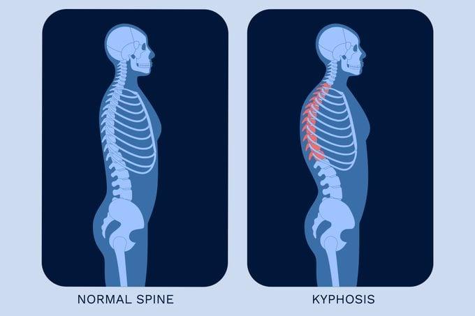Normal Spine Vs Kyphosis Illustration