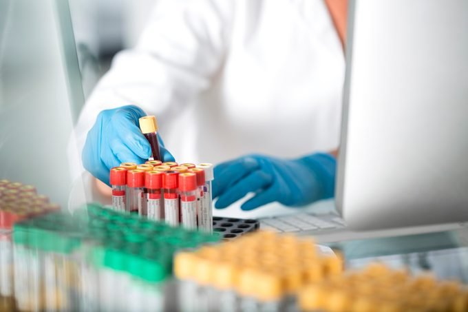 Close-up of lab technician examining blood samples in laboratory