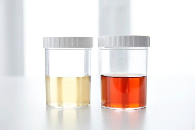 two urine sample cups side by side