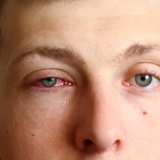 Man with pink eye (conjunctivitis)